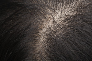 """What Can I Do About My Thinning Hair?"""