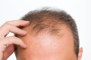 Is This Contributing To Your Hair Loss?